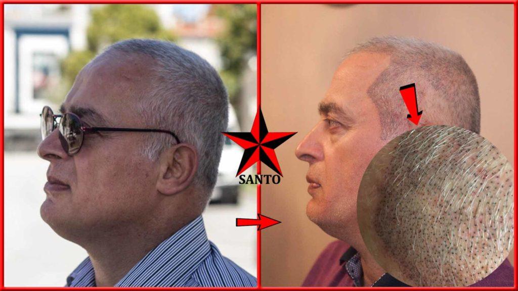 Eskişehir Saç simulasyonu,Saç gölgeleme Eskişehir, Protez saç eskişehir , Saç simulayonu eğitimi eskişehir ,Saç dövmesi eskişehir,saç simulasyonu fiyatları
