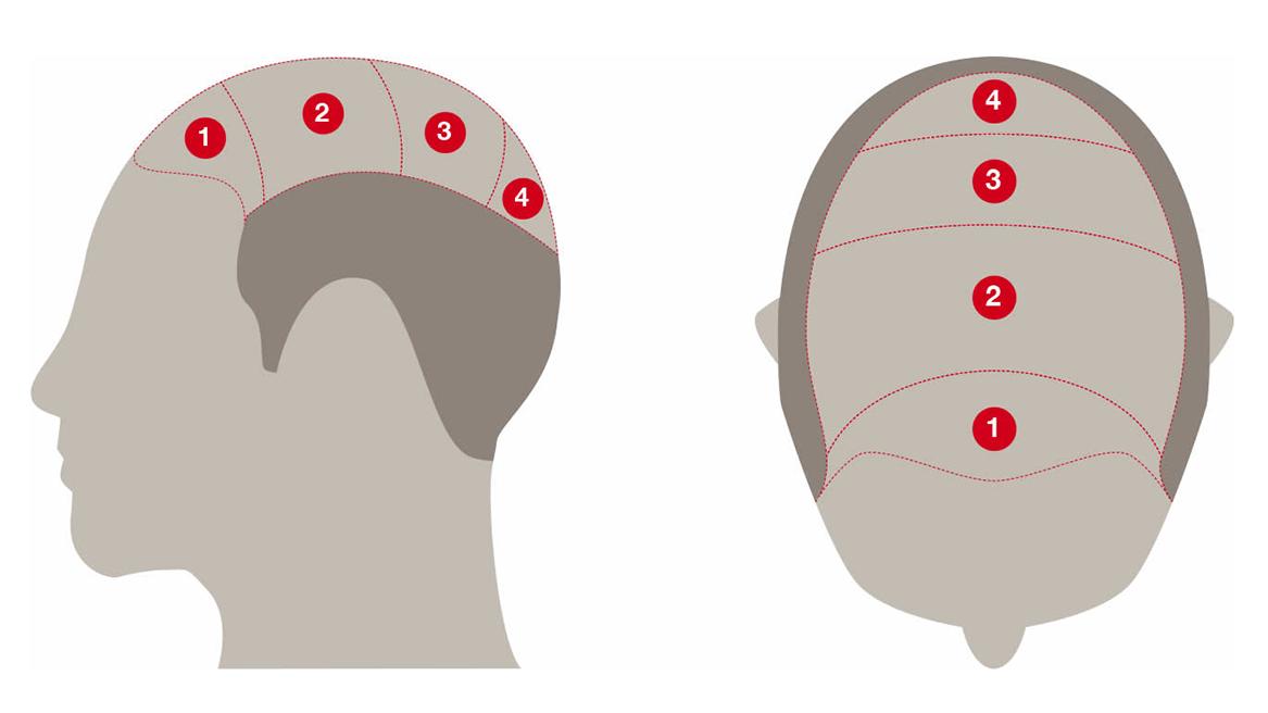 Saç simulasyonu,Saç gölgeleme , Protez saç , Saç simulayonu eğitimi ,Saç dövmesi ,saç simulasyonu fiyatları
