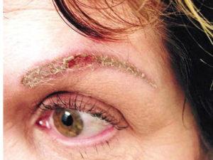 Kalıcı Makyaj Riskleri