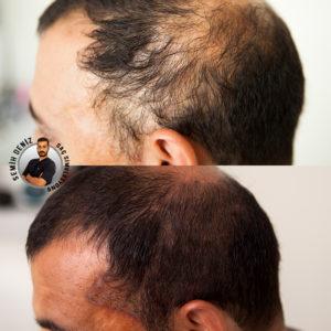 saç simülasyonu yaptıranlar,saç simülasyonu öncesi sonrası