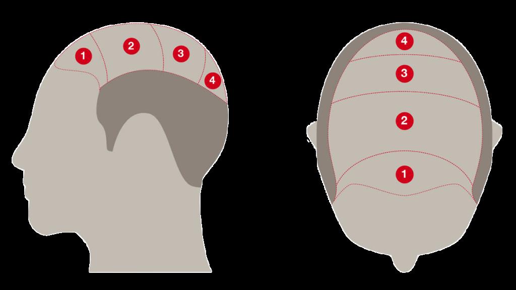 Saç simulasyonu yaptıranlar,saç simulasyonu önce sonrası,kellik kapatıcı,saç dövmesi,saç dövmesi fiyat,kellik kapatıcı,saç simulasyonu eğitimi