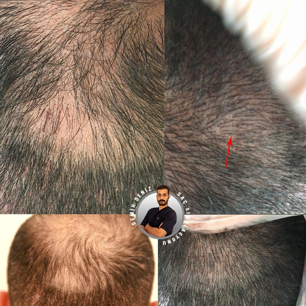 saç simulasyonu öncesi sonrası