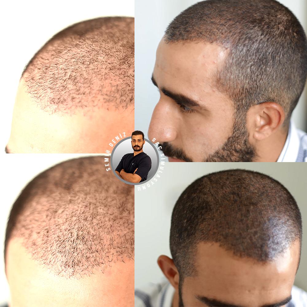 saç simulasyonu öncesi ve sonrası