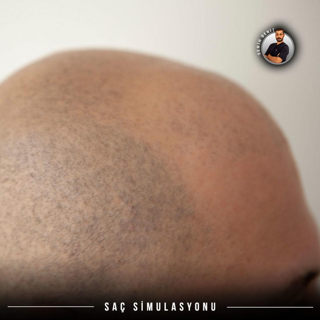 sac simulasyonu