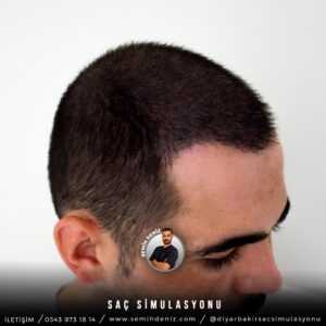 sac simulasyonu diyarbakır
