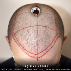 sac simulasyonu elazığ