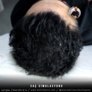 sac simulasyonu mardin