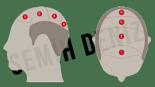 saç simulasyonu fiyat