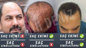 saç simülasyonu